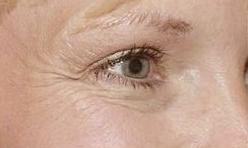 Göz çevresi için botox